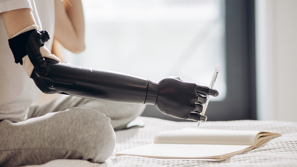 Individual uses an upper arm prosthetic to hold a pen.
